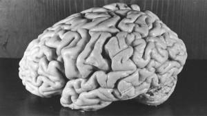 El cerebro de Einstein fotografiado por Harvey