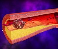 Cómo reducir rápidamente los niveles del colesterol «malo»